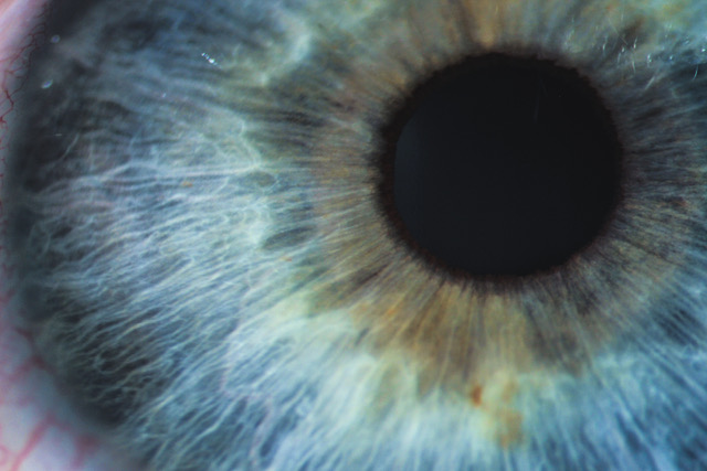 646, 646, An enlarged image of eye with a blue iris, eyelashes and sclera. the shot is made by a slit lamp with a built-in camera, AdobeStock_181546582.jpeg, 82948, https://ora-ai.com/wp-content/uploads/2019/10/AdobeStock_181546582.jpeg, https://ora-ai.com/technology-description/an-enlarged-image-of-eye-with-a-blue-iris-eyelashes-and-sclera-the-shot-is-made-by-a-slit-lamp-with-a-built-in-camera/, , 3, , An enlarged image of eye with a blue iris, eyelashes and sclera. the shot is made by a slit lamp with a built-in camera, an-enlarged-image-of-eye-with-a-blue-iris-eyelashes-and-sclera-the-shot-is-made-by-a-slit-lamp-with-a-built-in-camera, inherit, 57, 2019-10-09 20:19:14, 2019-10-09 20:29:16, 0, image/jpeg, image, jpeg, https://ora-ai.com/wp-includes/images/media/default.png, 640, 427, Array